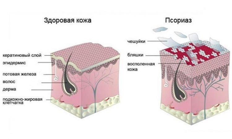 Всё, что нужно знать о псориазе 5
